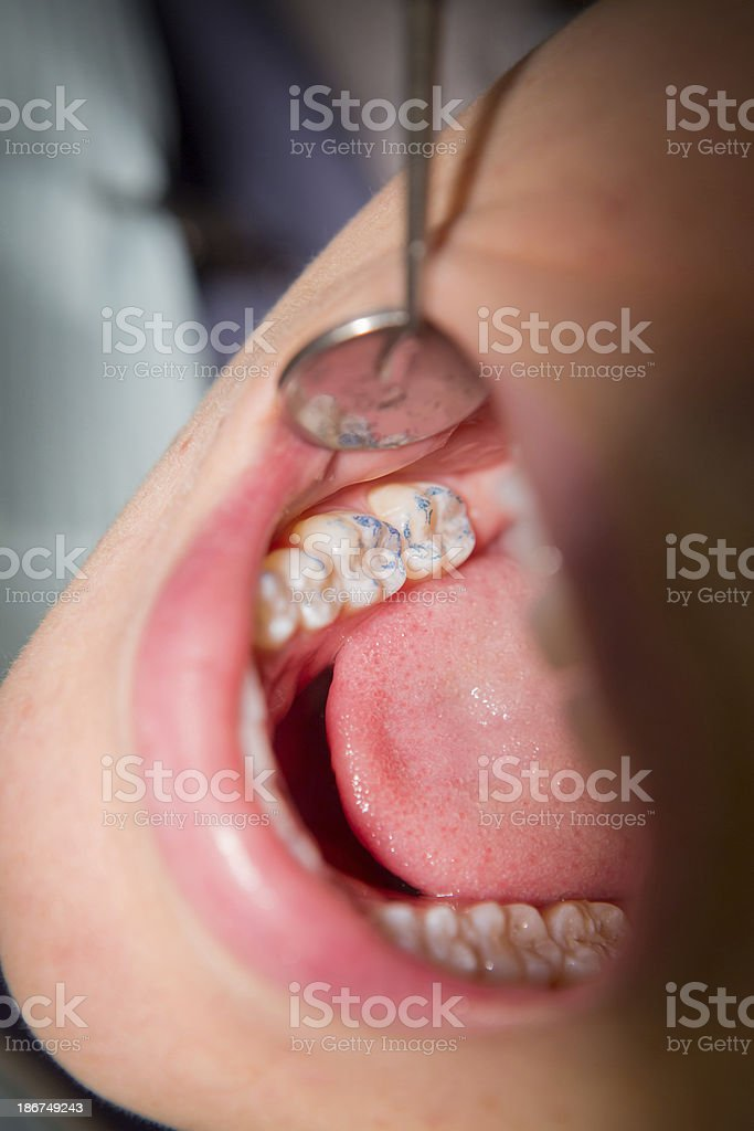 Young Woman Getting a Filling royalty-free stock photo
