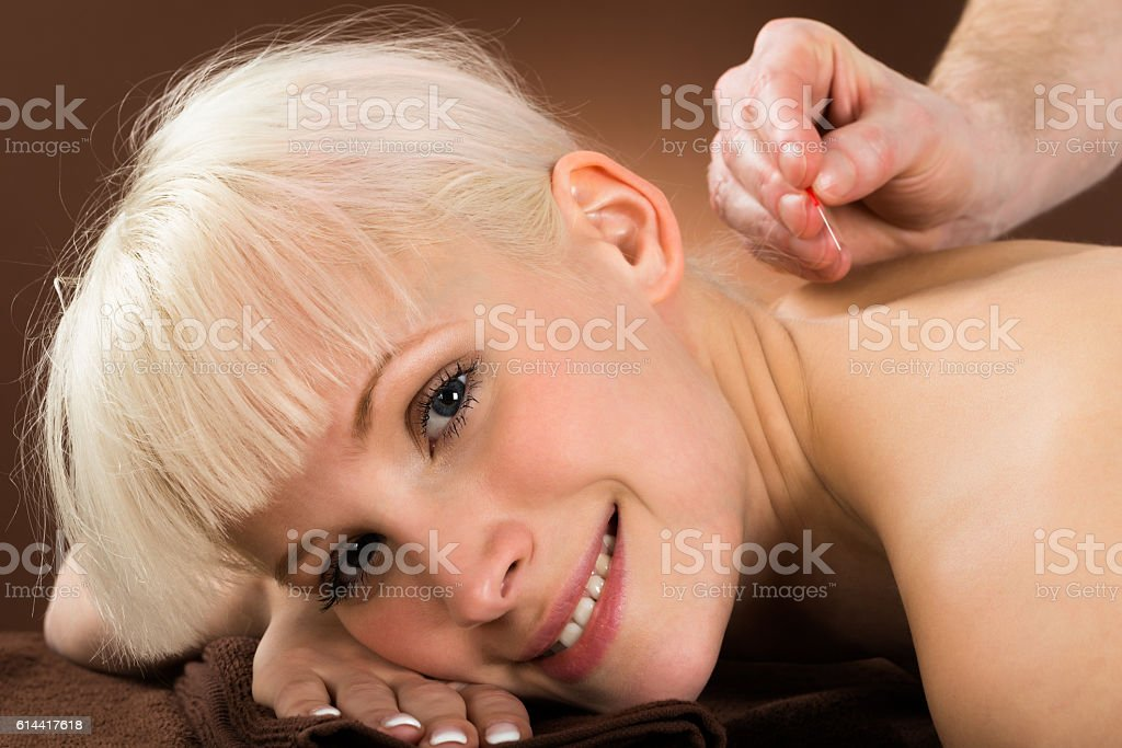 Young Woman Receiving Acupuncture Treatment stock photo