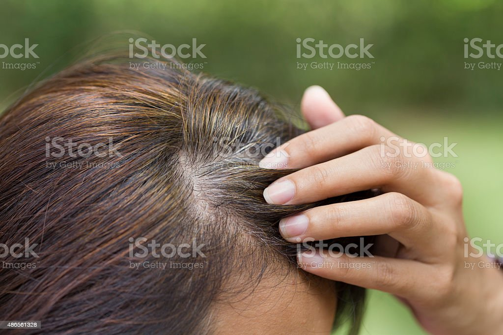 Young woman shows her gray hair roots stock photo