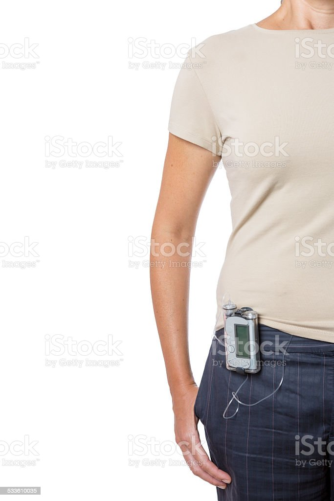 young woman wearing an insulin pump stock photo