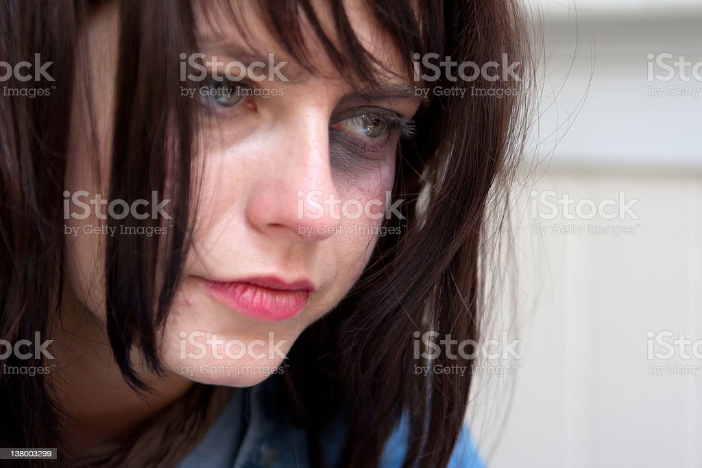 Young woman with black-eye crying stock photo