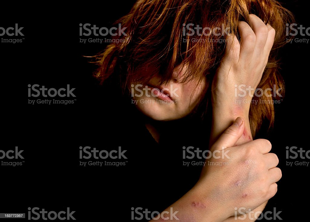 Young woman with bruises showing depression stock photo