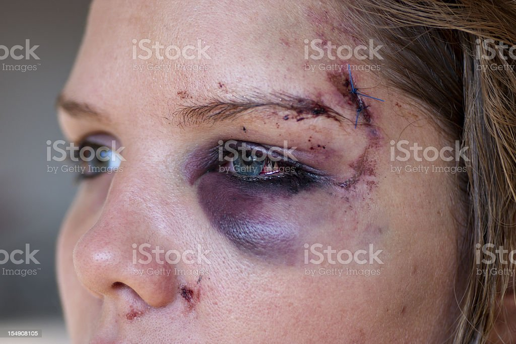 Young woman with eye injury - close up stock photo