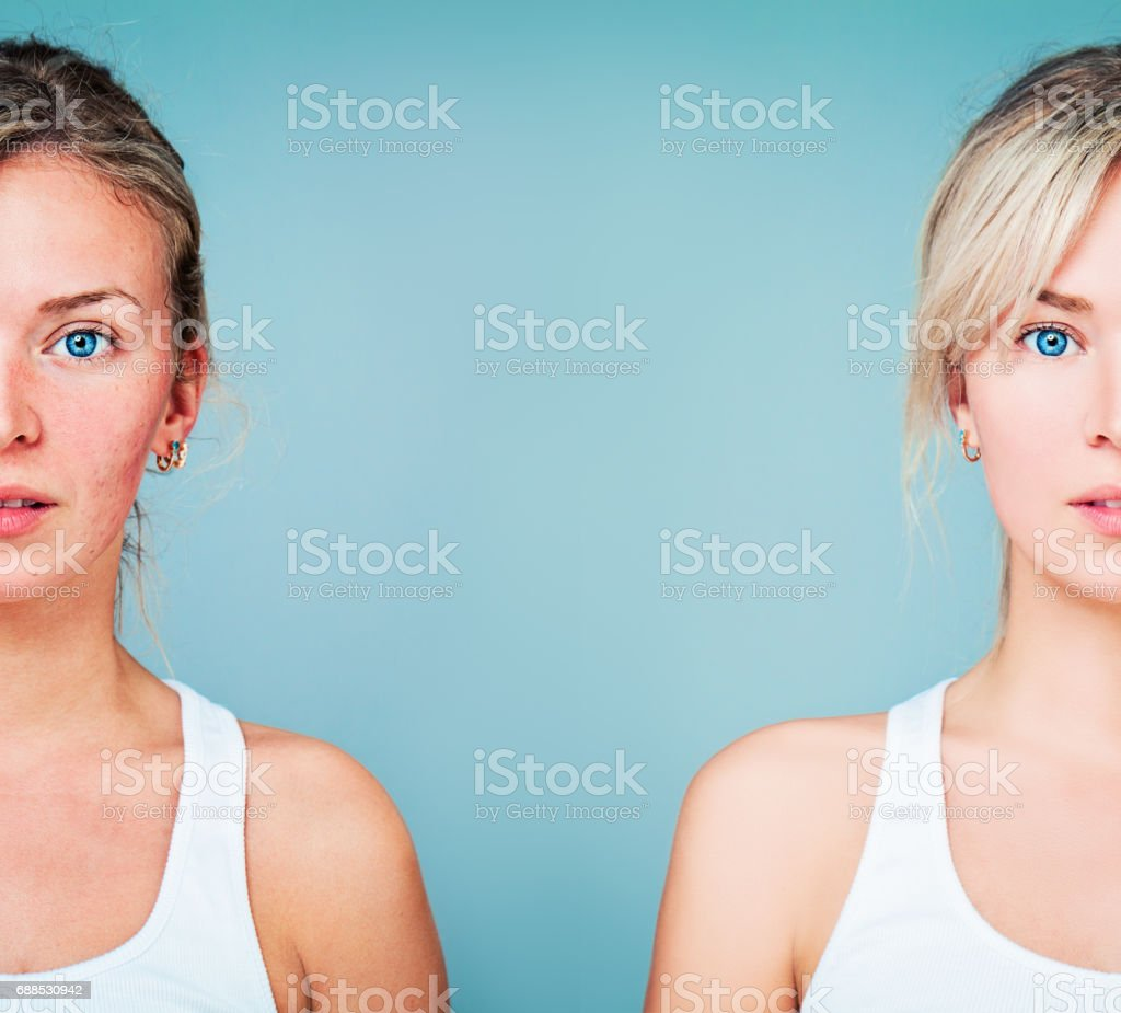 Young Woman with Perfect Skin and Skin Problem. Unhealthy and Healthy Skin After Treatment stock photo