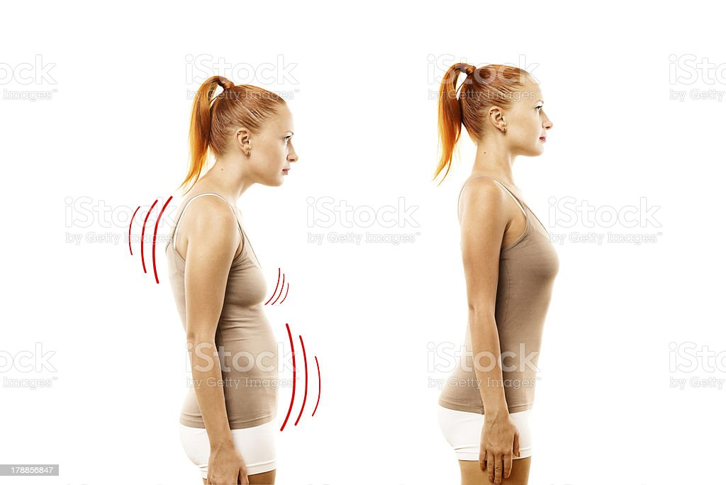 Young woman with position defect and ideal bearing stock photo