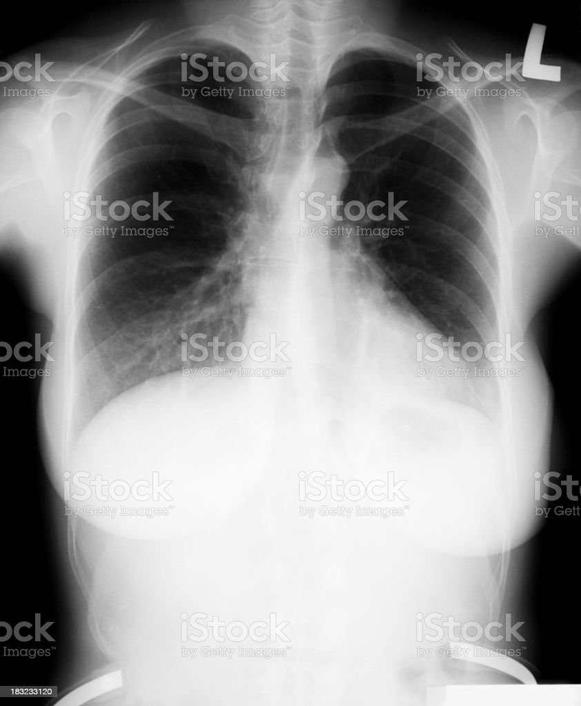 Young X-ray technician pointing at radioactivity sign royalty-free stock photo
