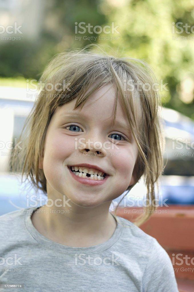 Zahnl?cke stock photo
