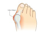Abnormal of foot shape from deformity joint toe.