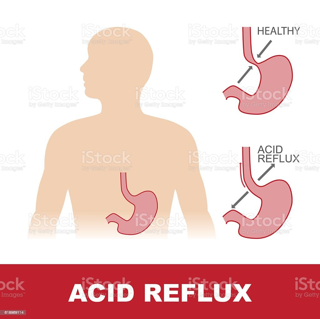 acid reflux stomach disease vector art illustration