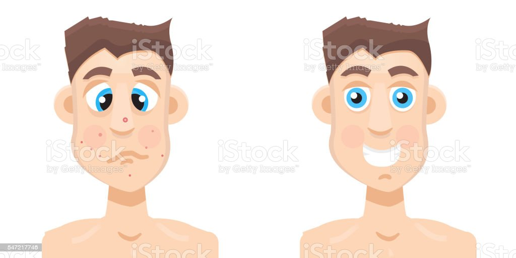 acne man vector art illustration