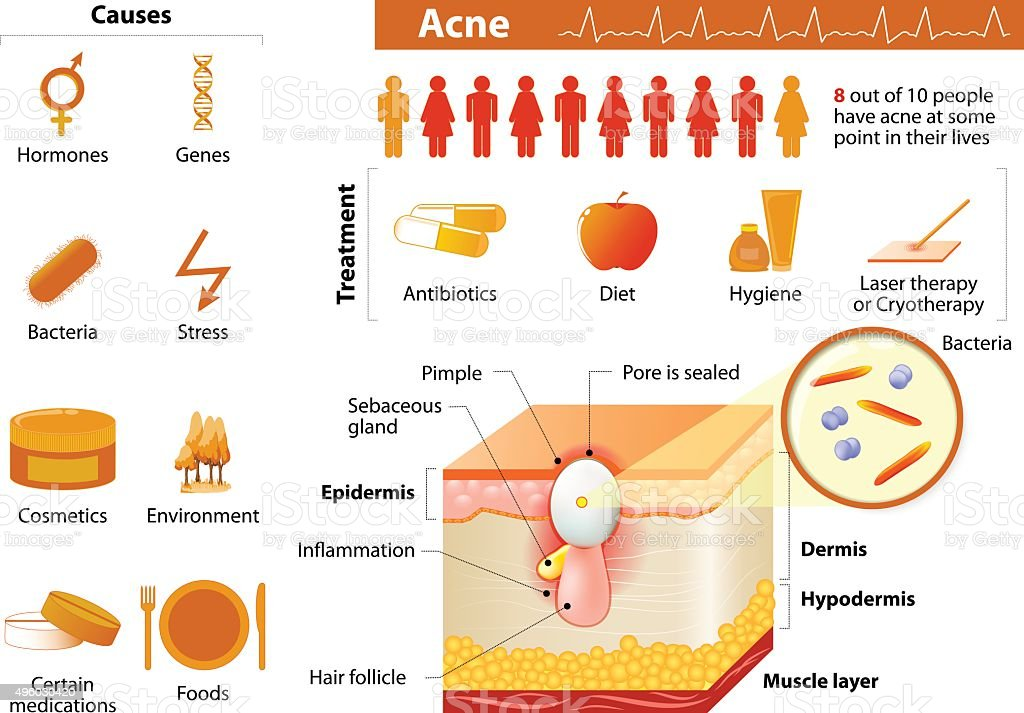 Acne. skin problems. medicine in medical infographics. vector art illustration