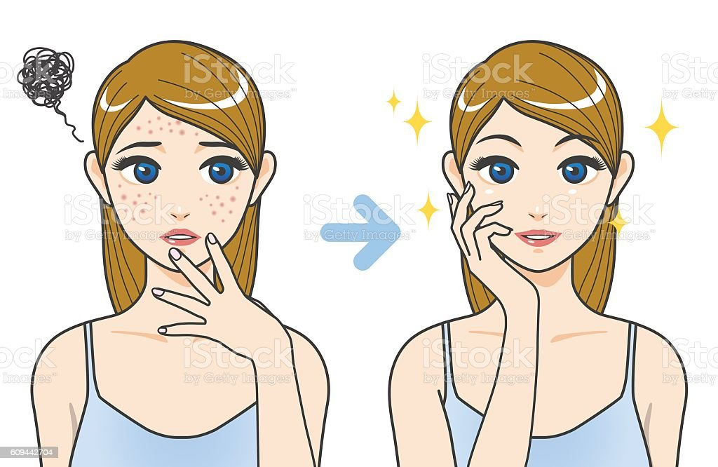acne treatment before after image illustration vector art illustration
