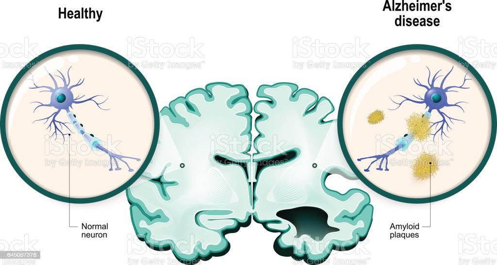 Alzheimer's disease. Neurons and brain vector art illustration