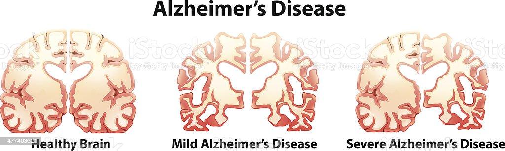 Alzheimer's Disease royalty-free stock vector art