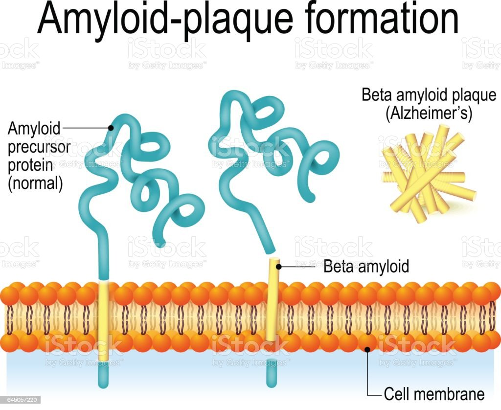 Amyloid-plaque formation. Alzheimer's disease vector art illustration