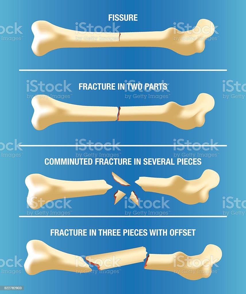 Anatomy multiple bone fractures of the skeleton vector art illustration