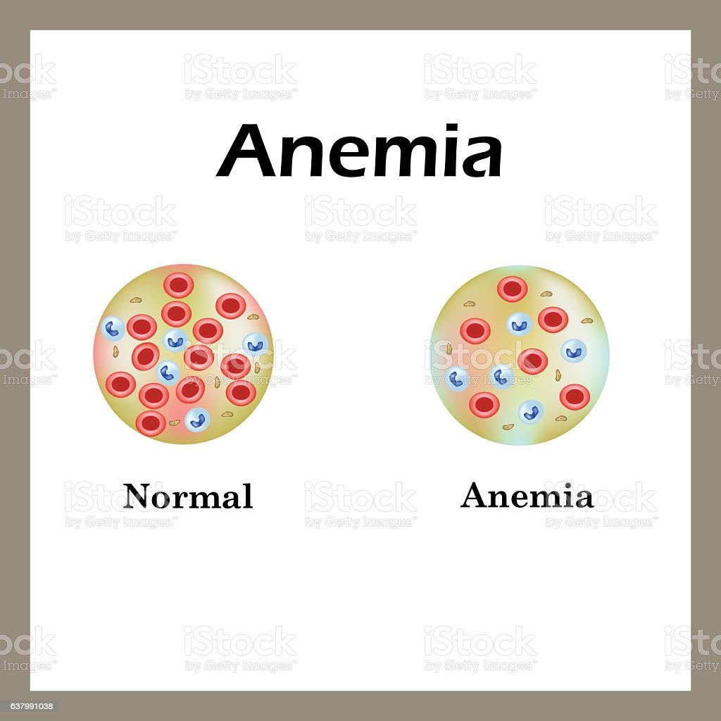 Anemia. The reduced amount of red blood cells. Infographics. Vector vector art illustration