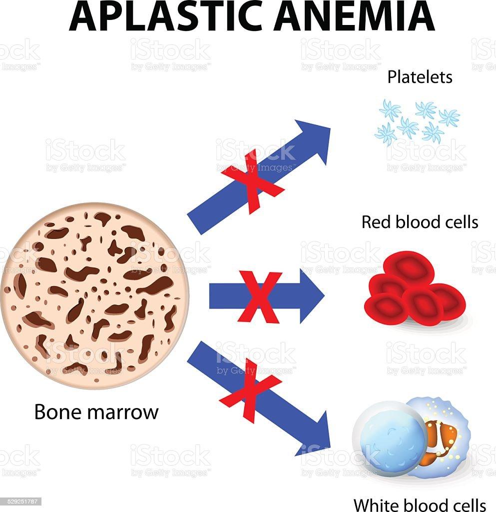aplastic anemia vector art illustration