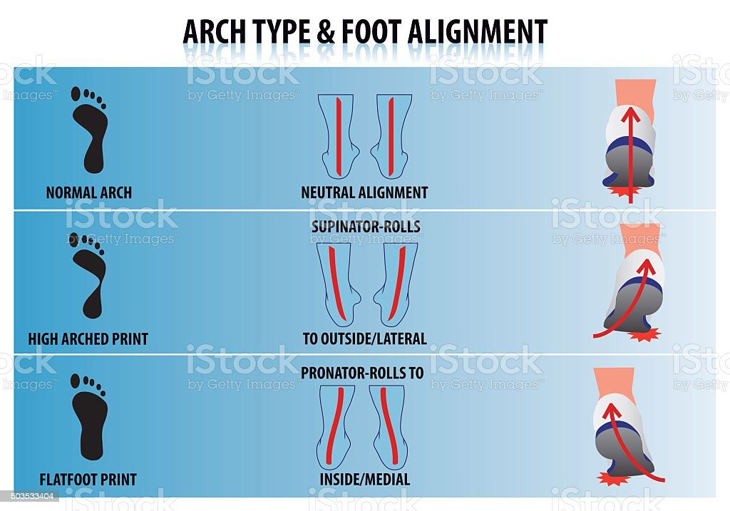 Arch Type and Foot Alignment vector art illustration