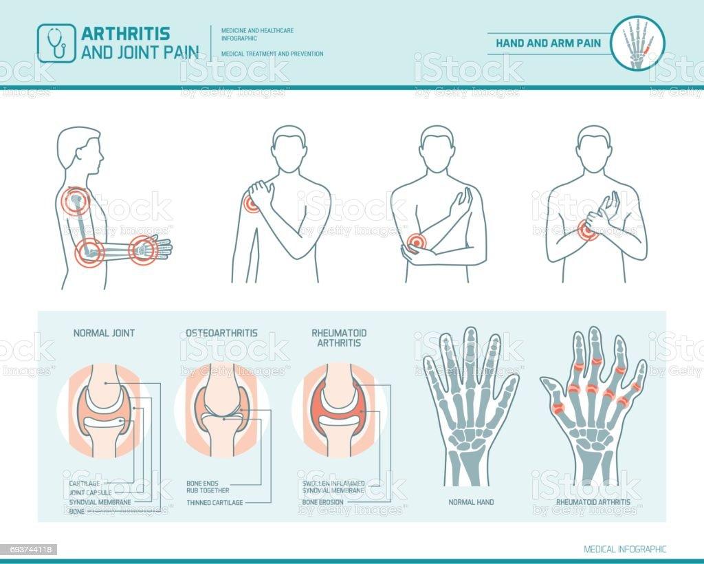 Arthritis and joint pain vector art illustration