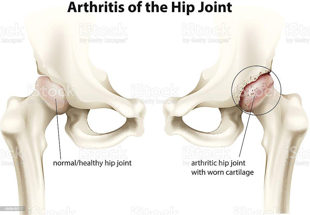 Arthritis of the hip joint vector art illustration