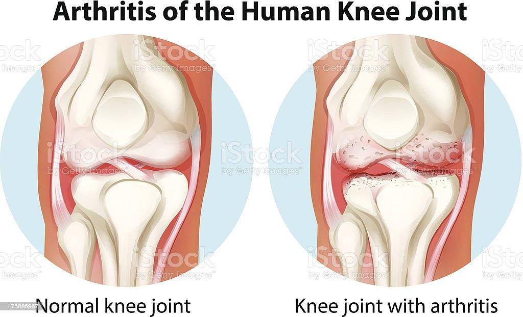 Arthritis of the human knee joint royalty-free stock vector art