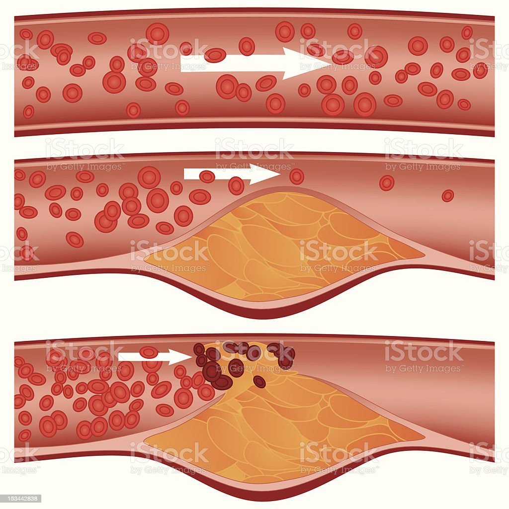 Atherosclerosis royalty-free stock vector art