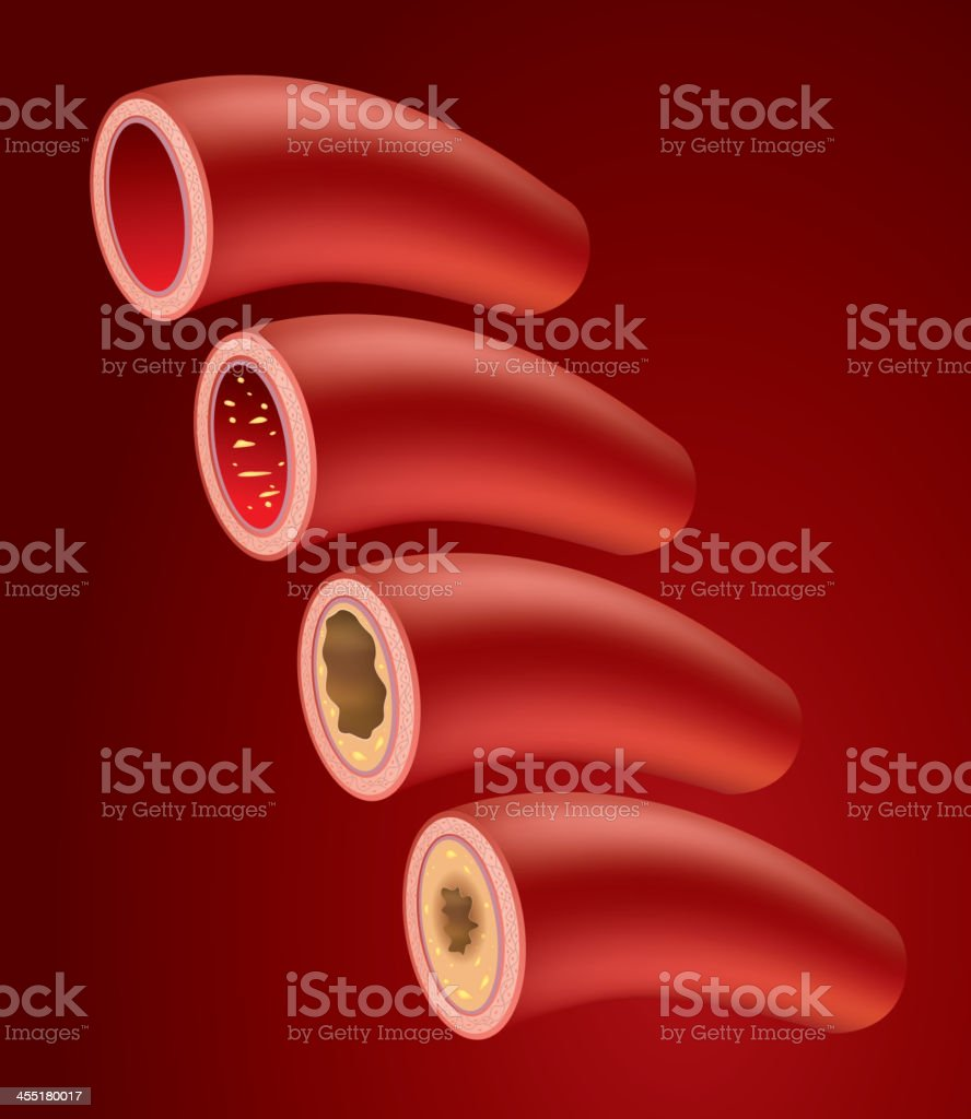 Atherosclerosis vector art illustration