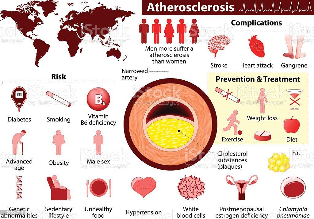 Atherosclerosis vector art illustration