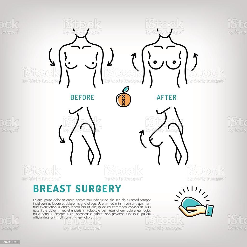 Augmentation Breast plastic surgery icons. Silicone implants, Thin line symbols vector art illustration