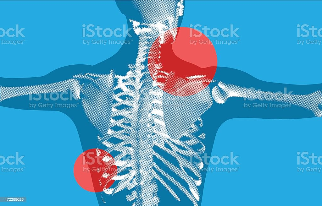 Back Skeletal XRay scan royalty-free stock vector art