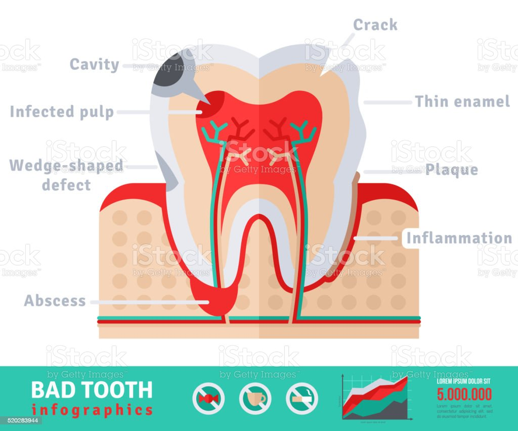 Bad tooth anatomy flat icon concept vector art illustration