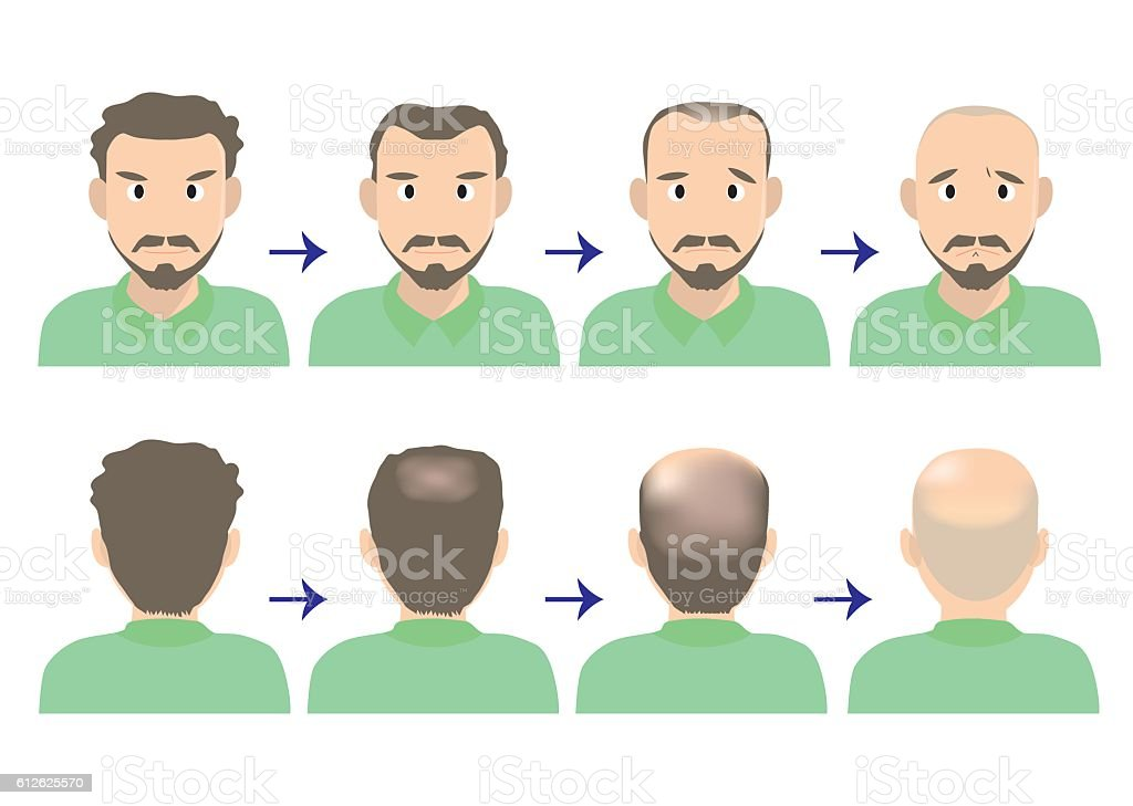 balding head A vector art illustration