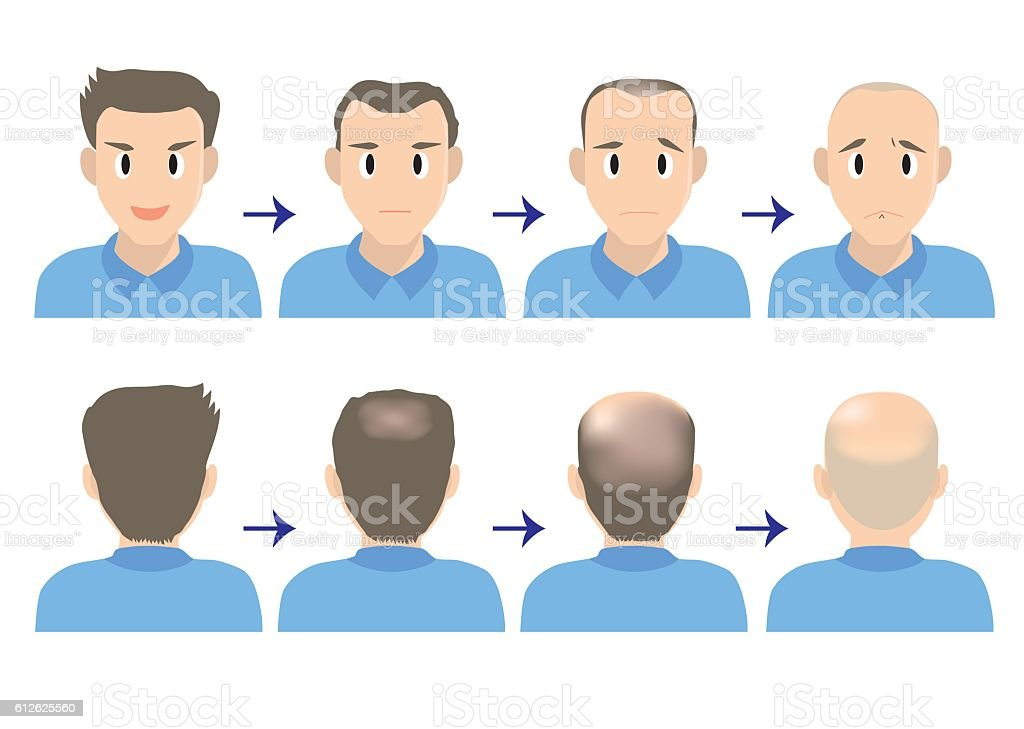 balding head B vector art illustration