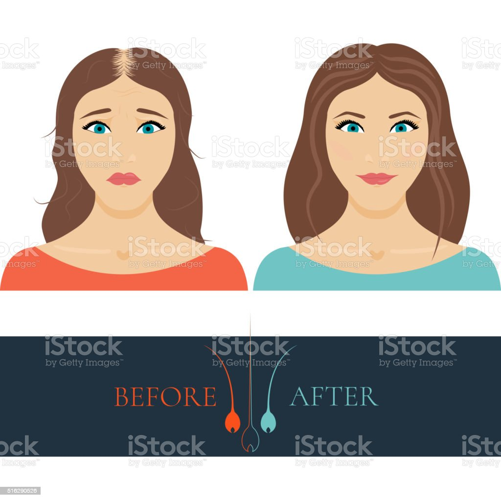 Balding woman before and after hair treatment vector art illustration