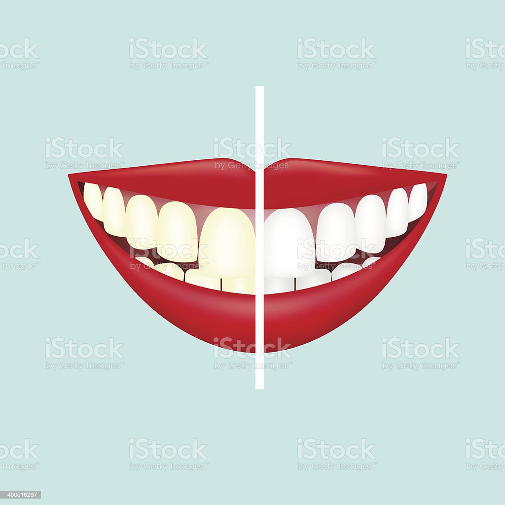 Before and after view of teeth whitening vector art illustration