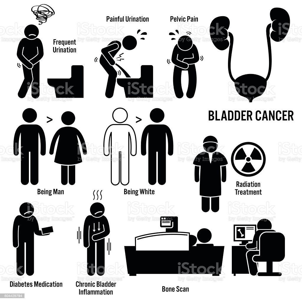 Bladder Cancer Illustrations vector art illustration
