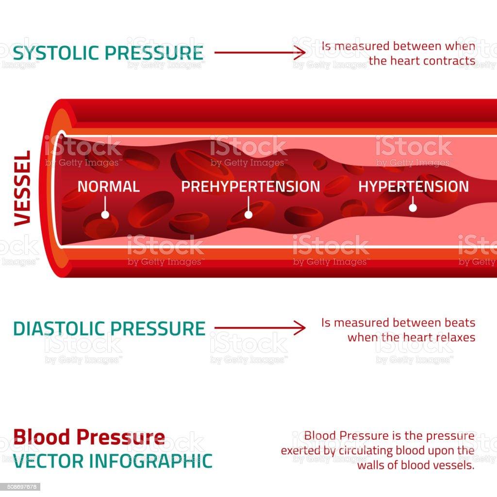 Blood Pressure Infographic vector art illustration