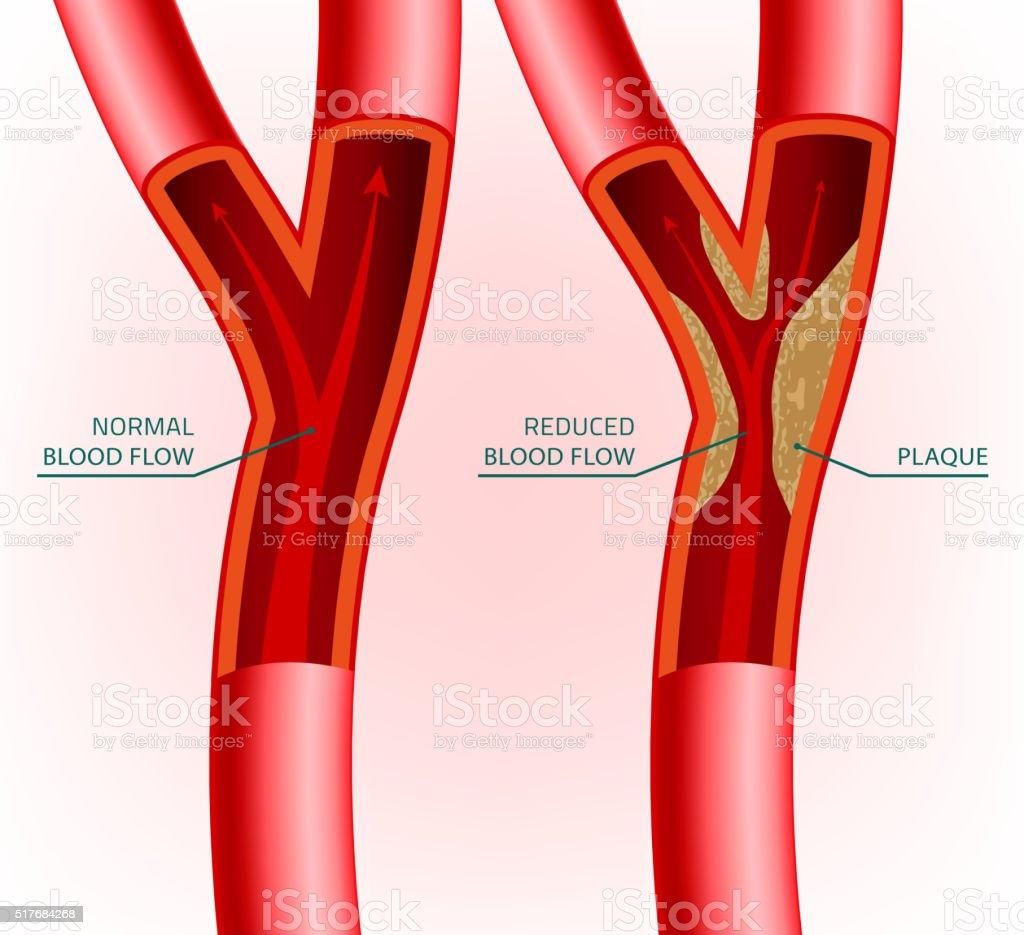 Blood Vein Image vector art illustration