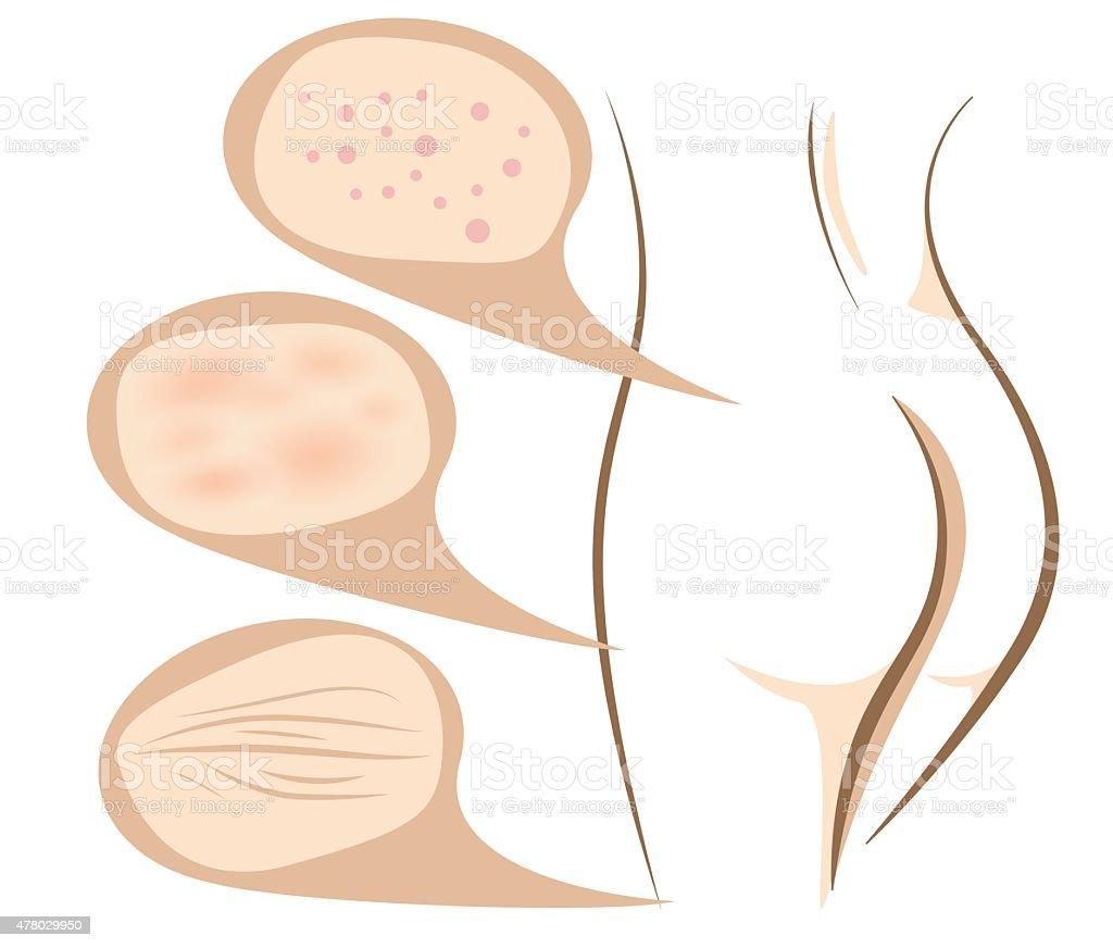 Body concept of anti aging procedures on skin vector art illustration