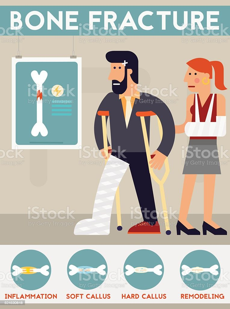 Bone fracture vector character cartoon illustration vector art illustration