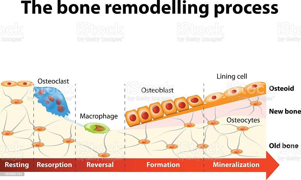 bone remodelling process vector art illustration