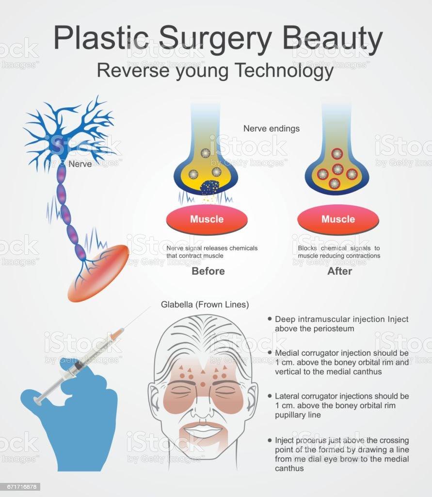 Botox. Plastic surgery. vector art illustration