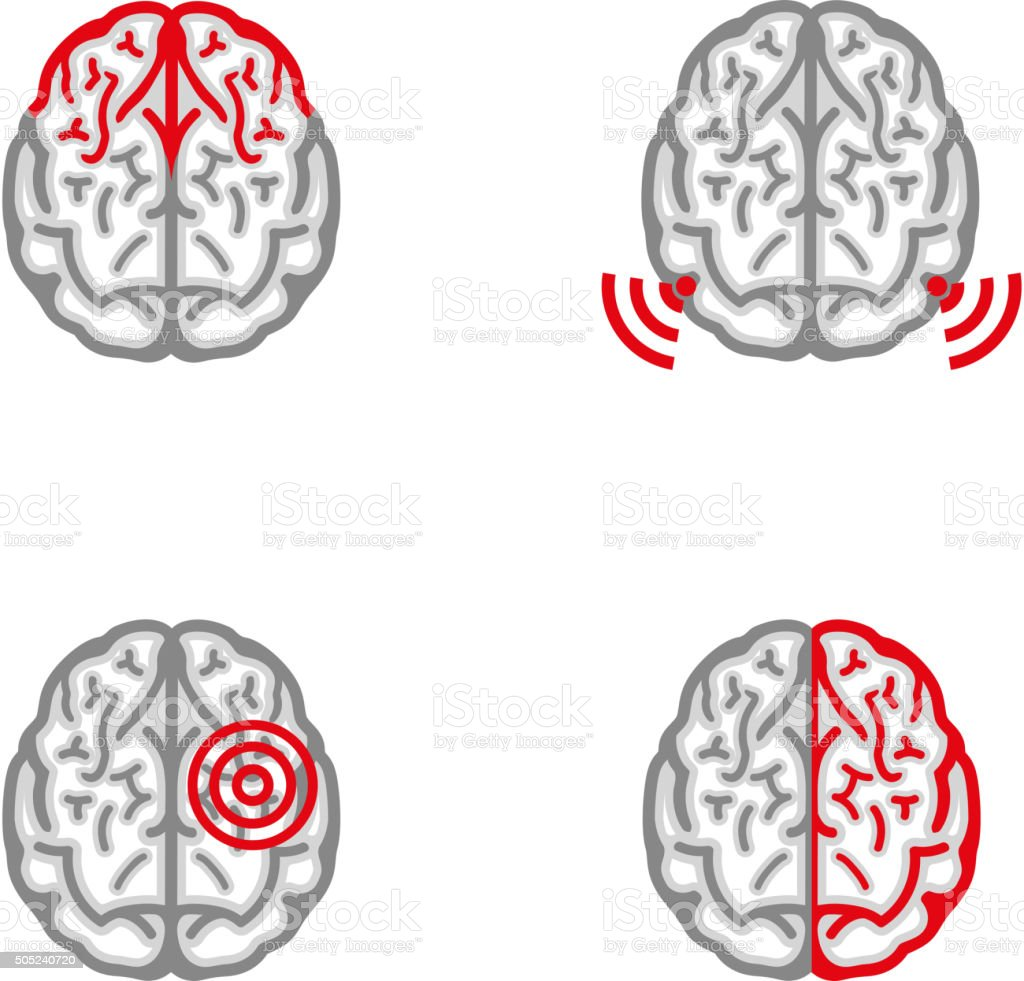 Brain Pain Icon vector art illustration