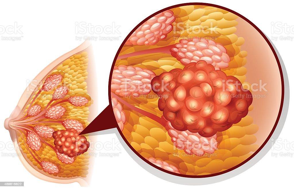 Breast cancer on white vector art illustration