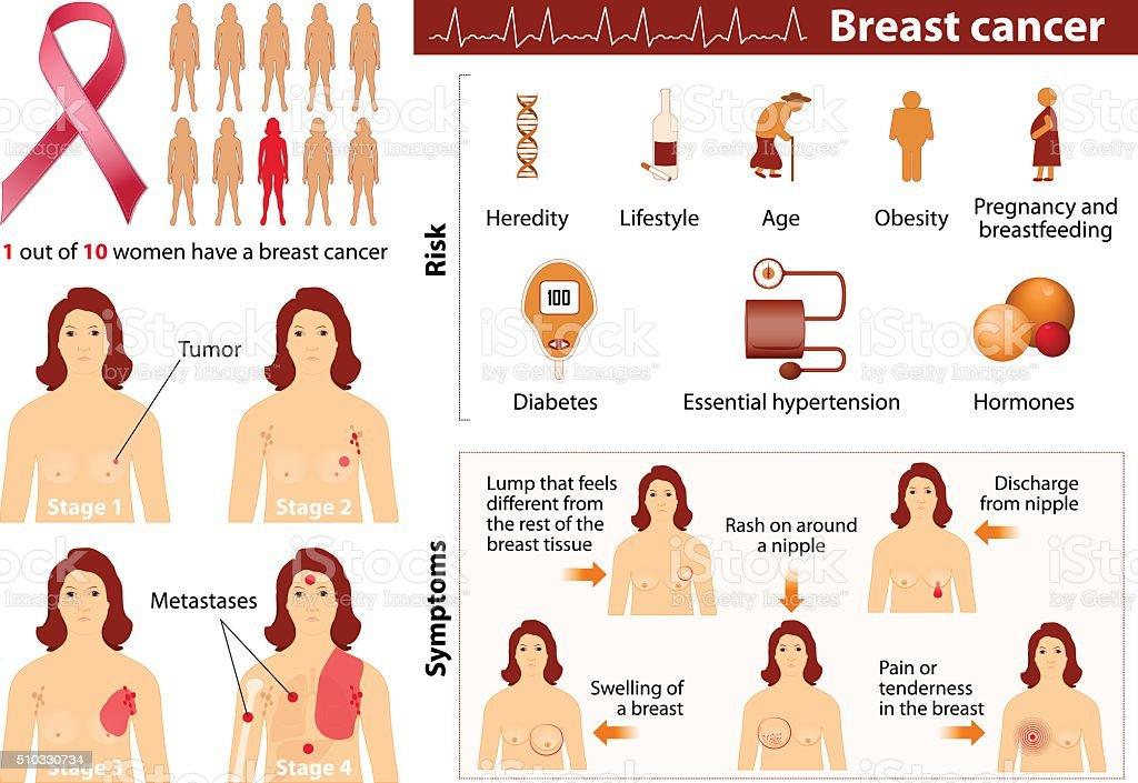 Breast cancer vector art illustration