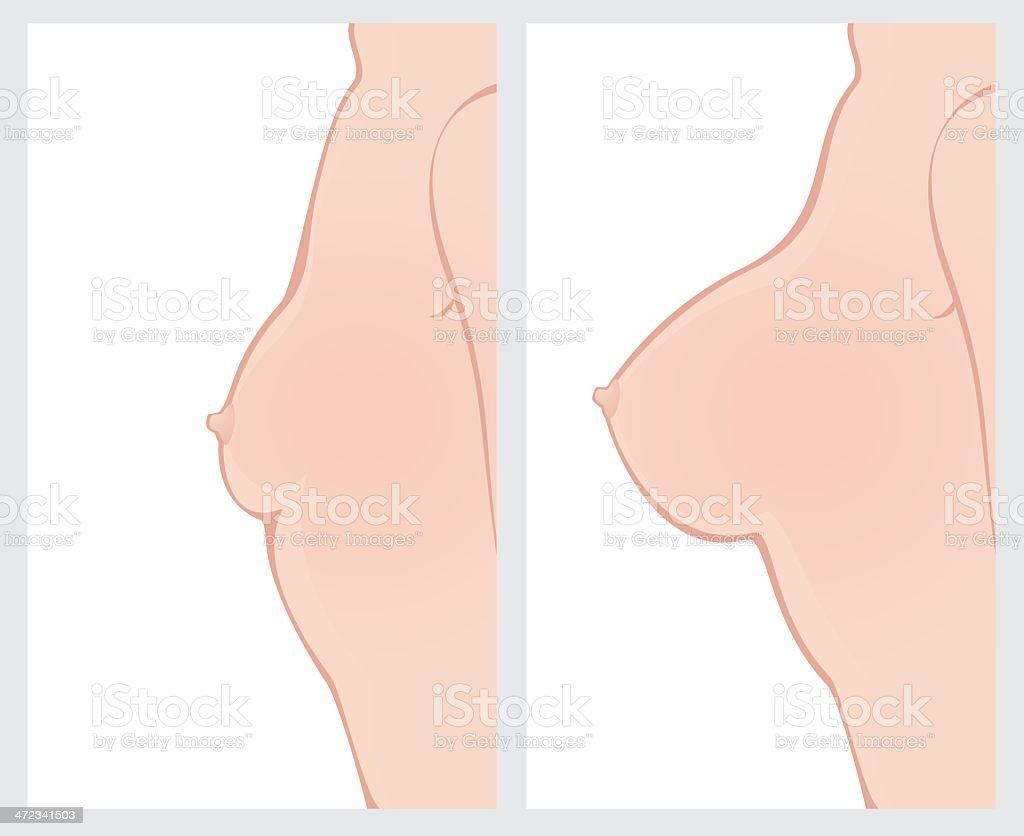 Breast enlargement before and after treatment royalty-free stock vector art
