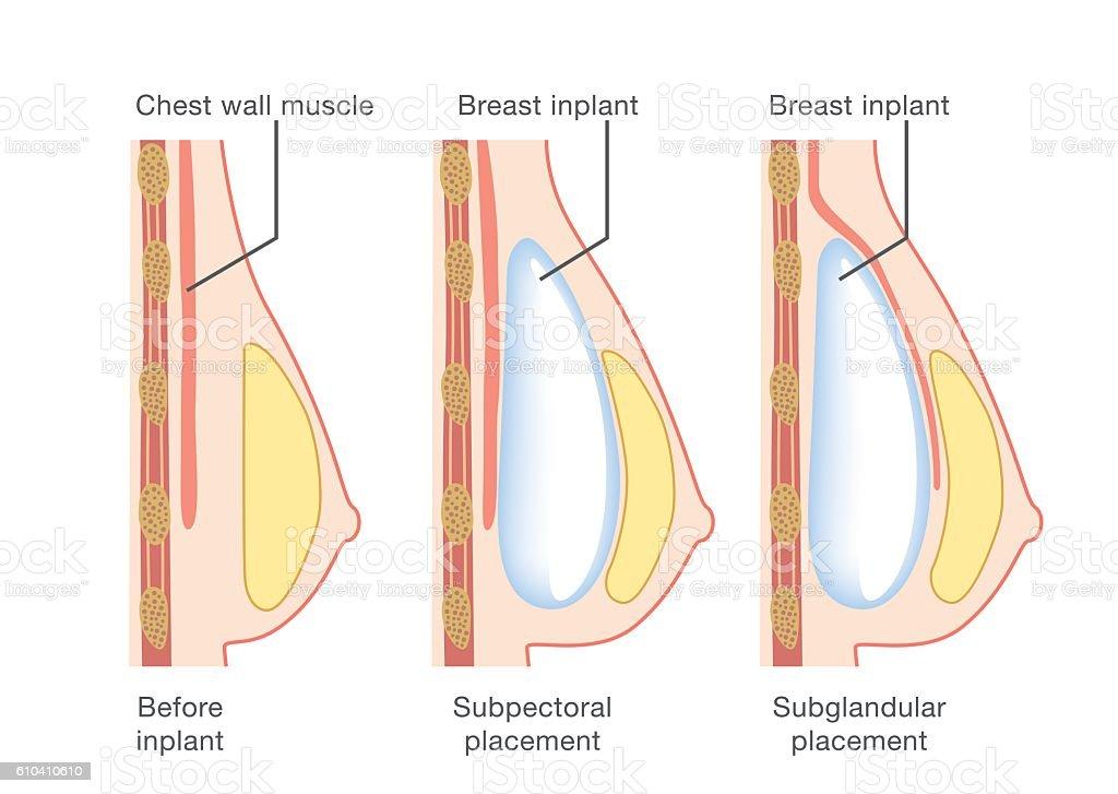 Breast implant insertion vector art illustration