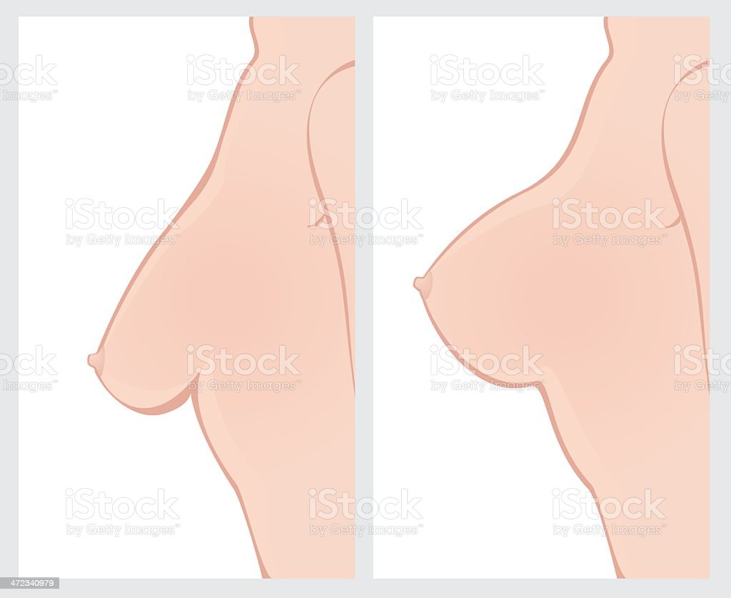 Breast Uplift before and after treatment royalty-free stock vector art