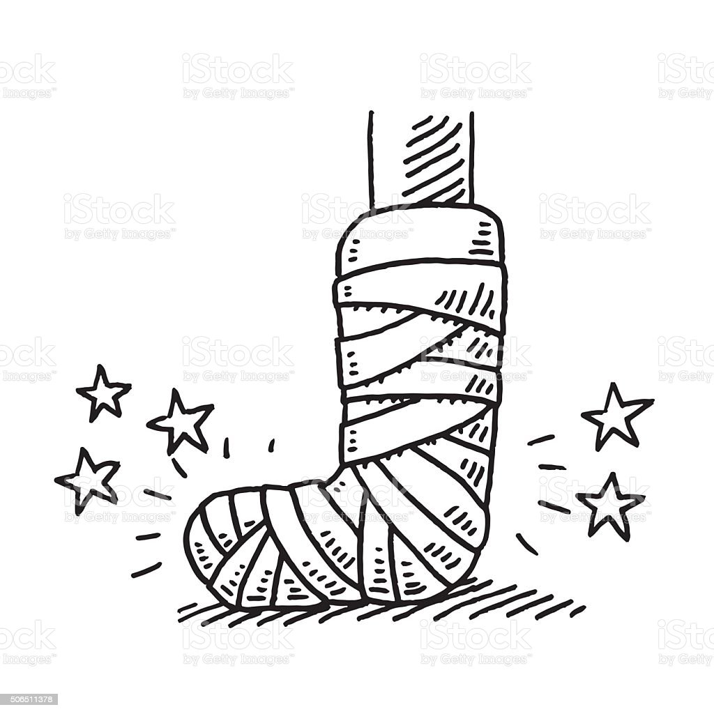 Broken Leg Injury Bandage Drawing vector art illustration